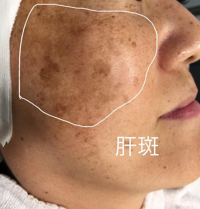 [ 女性の頬によくみられる肝斑 ]
