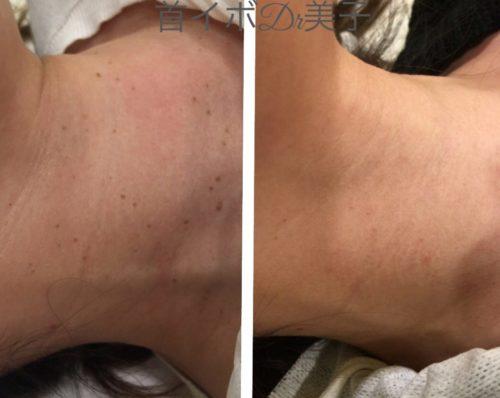 首イボの症例写真