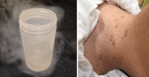 液体窒素による治療